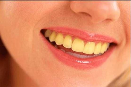 Ποιες τροφές αφήνουν λεκέδες στα δόντια;