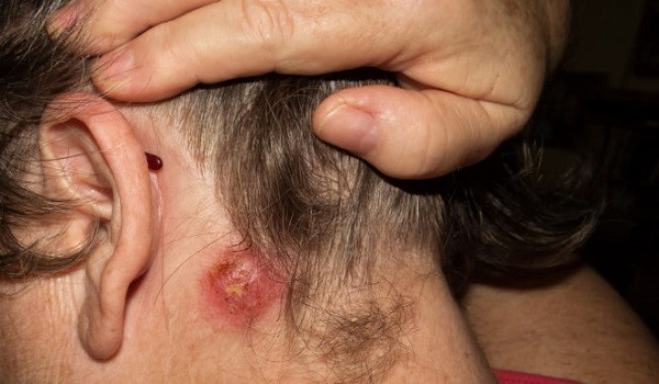 Σταφυλόκοκκος: Ποια τα πρώτα σημάδια της μόλυνσης – Ποιοι κινδυνεύουν περισσότερο