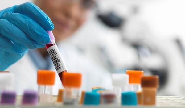 Δέκα ερωτήσεις και απαντήσεις για το εμβόλιο του κορονοϊού – Που βρίσκονται οι έρευνες